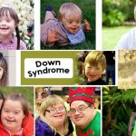 Down Syndrome Awareness Month and the slippery slope of abortion